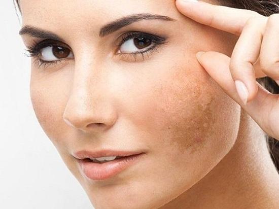 Tất tần tật về nám da và cách trị nám da hiệu quả cho chị em làn da sáng khỏe